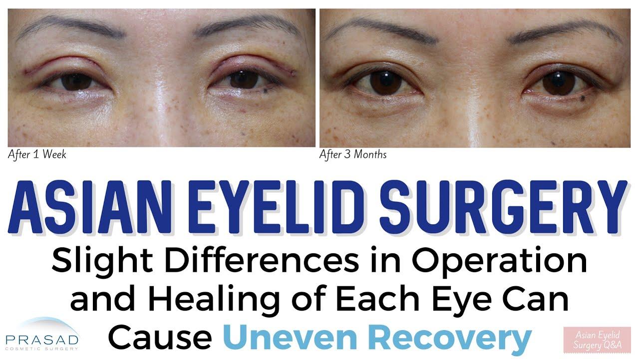 asian eye crease surgery