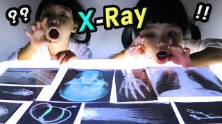 หนูยิ้มหนูแย้ม   เอ็กซเรย์ X-RAY กระดูกคนและสัตว์
