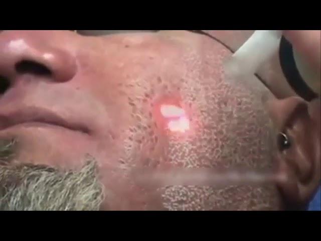 Laser Penghilang Acne