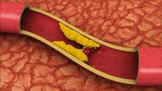 Статины от холестерина: польза и вред