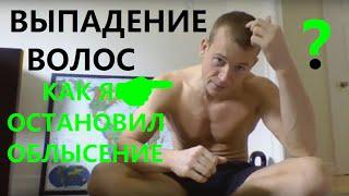 видео Выпадение волос у мужчин: особенности, причины, лечение