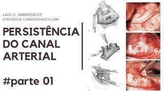 Persistência do canal arterial: Da anatomia à estratégia cirúrgica (videoaula - PARTE 01)
