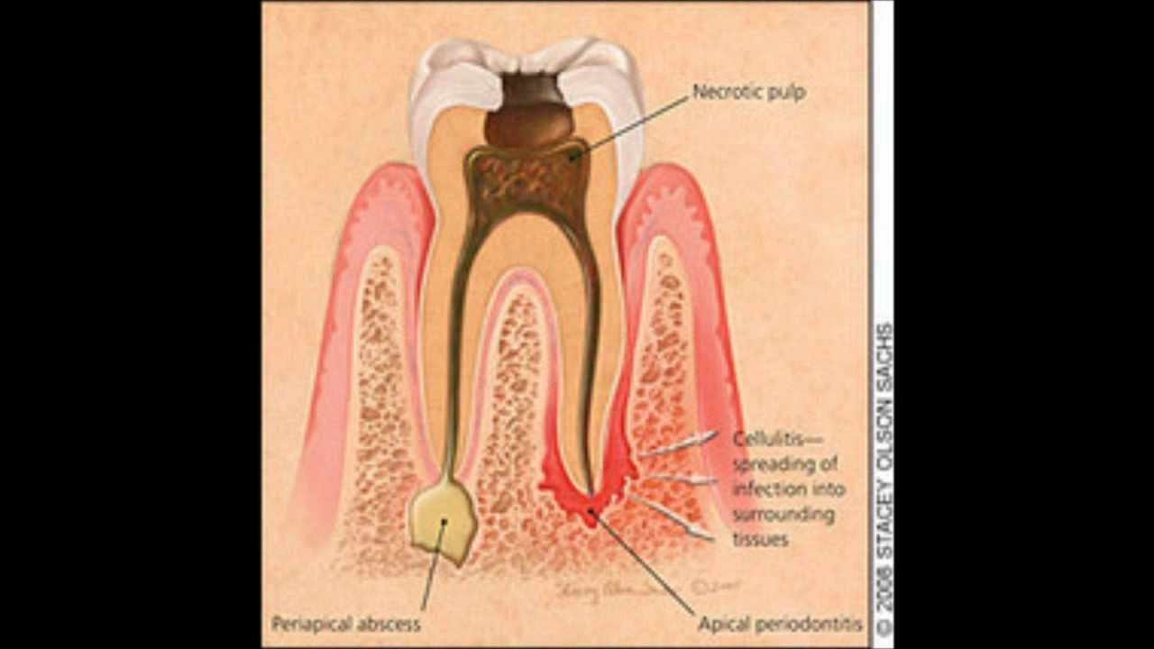 What is a tooth granuloma 35