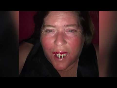 Wake Up Call - Woman Seeks Emergency Dentists' Help After Super-Gluing Fake Fangs To Teeth