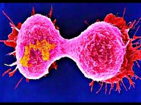 Breast cancer medical powerpoint presentation youtube breast cancer medical powerpoint presentation toneelgroepblik Gallery