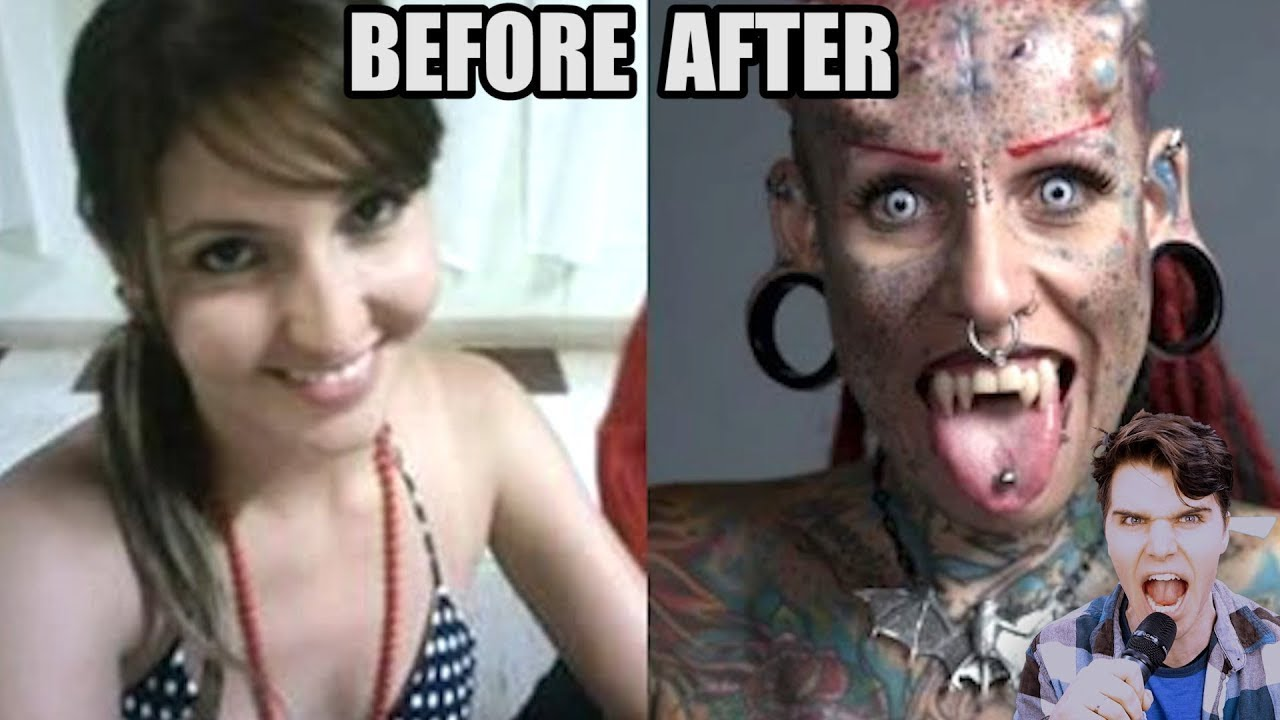 Before and after facial feminization autogynephilia