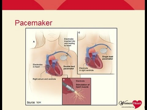 WEBINAR RECORDING: Women, Heart Disease and Medical Devices