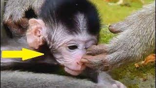 Monkey attack boy