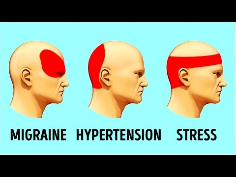 how-to-get-rid-of-a-headache-in-5-minutes