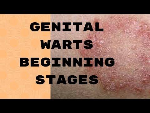 Genital Warts Beginning Stages