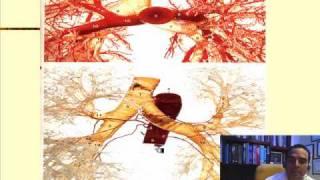 En tamilselvi bronquial arteria