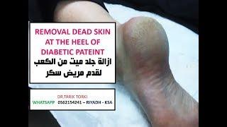REMOVAL CALLUS AT THE HEEL OF DIABETIC PATEINT | ازالة جلد ميت من الكعب لقدم مريض سكر