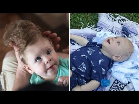 Baby Born with Brain Outside of Skull Gets Life-Changing Surgery