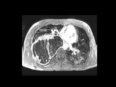 Malignant peripheral nerve sheath tumor in NF-1