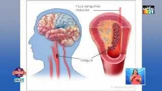 Cerebrovascular wikipedia enfermedad isquemica
