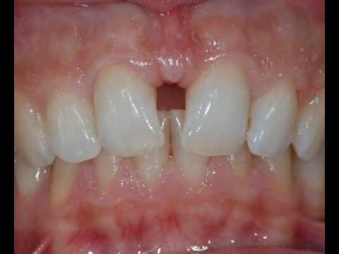 Dr bon gaia dentista chiusura di diastema tra denti incisivi centrali superiori youtube - Finestra tra i denti ...