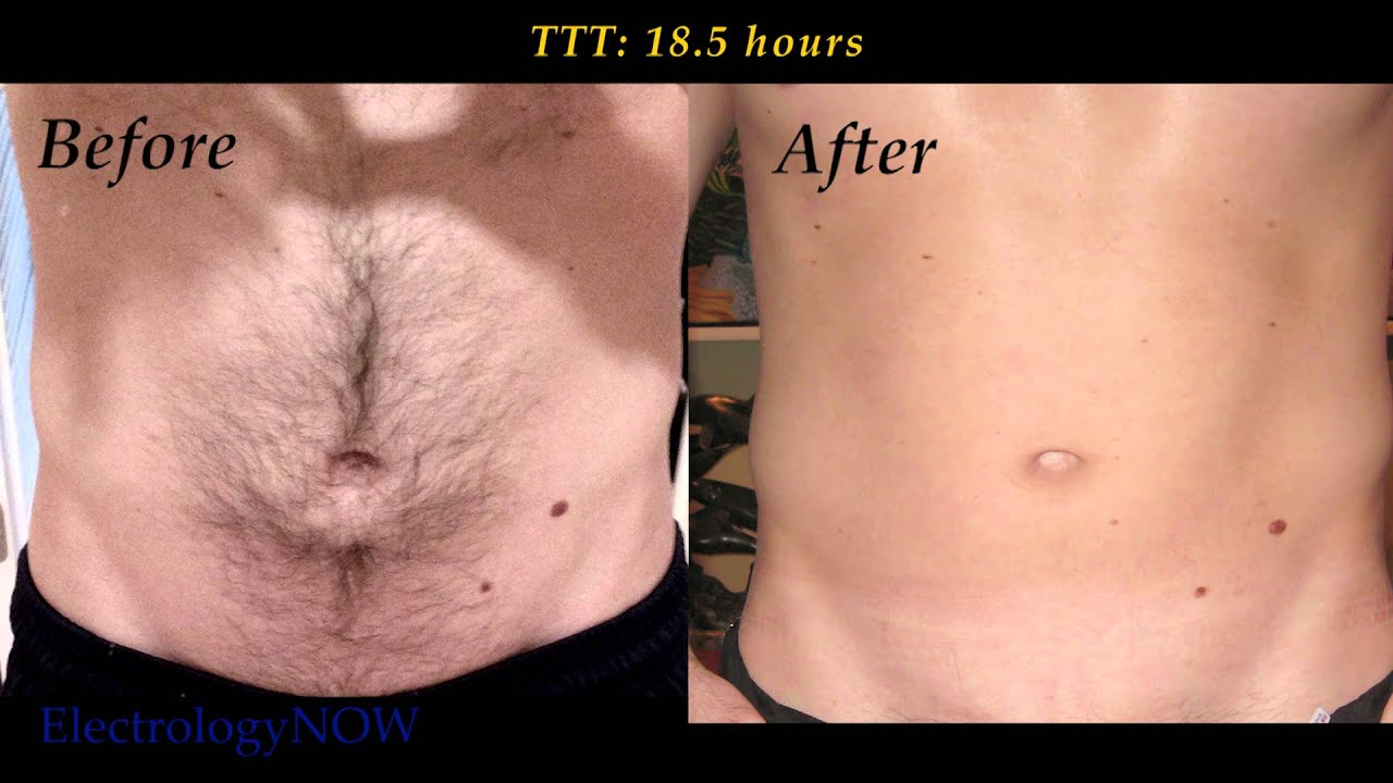 Male Abs Hair Removal Youtube