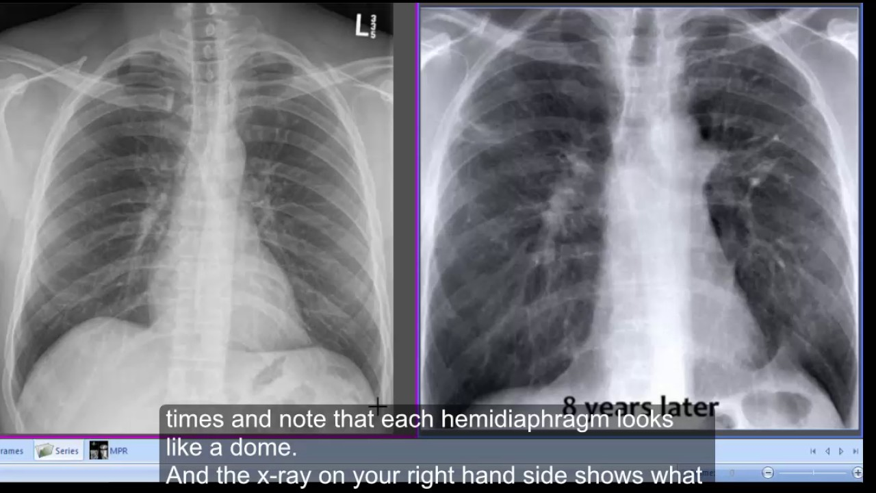 Chest x-ray Tenting of hemidiaphragms & Chest x-ray Tenting of hemidiaphragms - YouTube