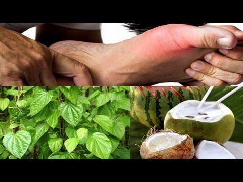 """Bài thuốc trị dứt """"bệnh nhà giàu"""" gout chỉ với nước dừa và lá trầu"""