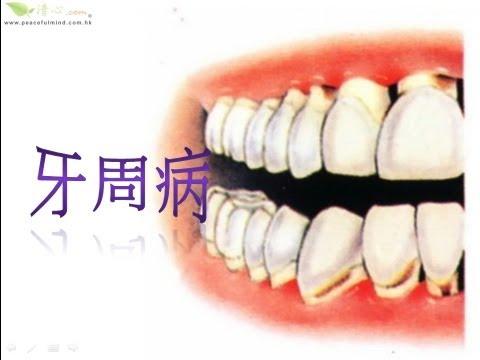 防止牙周病   Doovi