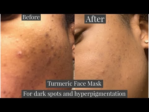 turmeric-face-mask-for-dark-spots-and-hyper-pigmentation