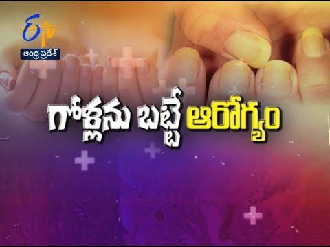 Nails and Health | Sukhibhava | 23rd July 2017 | Full Episode | ETV Andhra Pradesh