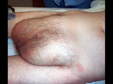 Infecciones Sexsuales 16