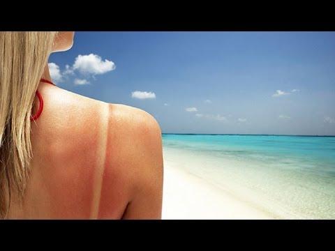 Солнечный ожог лечение. Помощь при солнечныз ожогах