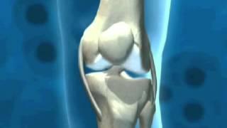 Коллаген для суставов и восстановления хряща(, 2014-09-19T07:19:22.000Z)