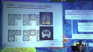 Manuel Desco: Quantitative analysis of brain MRI studies