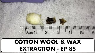 COTTON WOOL & EAR WAX REMOVAL - EP 85