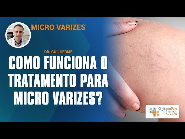 Varizes a Laser: O médico Dr. Guilherme Szerman explica sobre o tratamento (Laser Harmony)