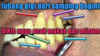Membongkar penyebab sakit gigi. Sakit gigi yang terus menerus amat sangat mengganggu. Sering kambuh .