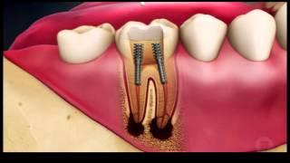 Лечение пульпита и периодонтита с дальнейшей реставрацией зуба(, 2015-06-10T20:21:54.000Z)