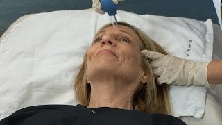 Facial Cupping for Youthful Skin?