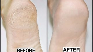 How to Get Rid of Cracked Heels in Just 3 Nights!