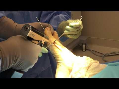 MIS SERI Bunionectomy