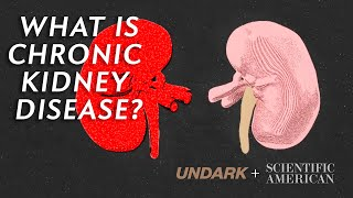 What is chronic kidney disease and how does dialysis work?