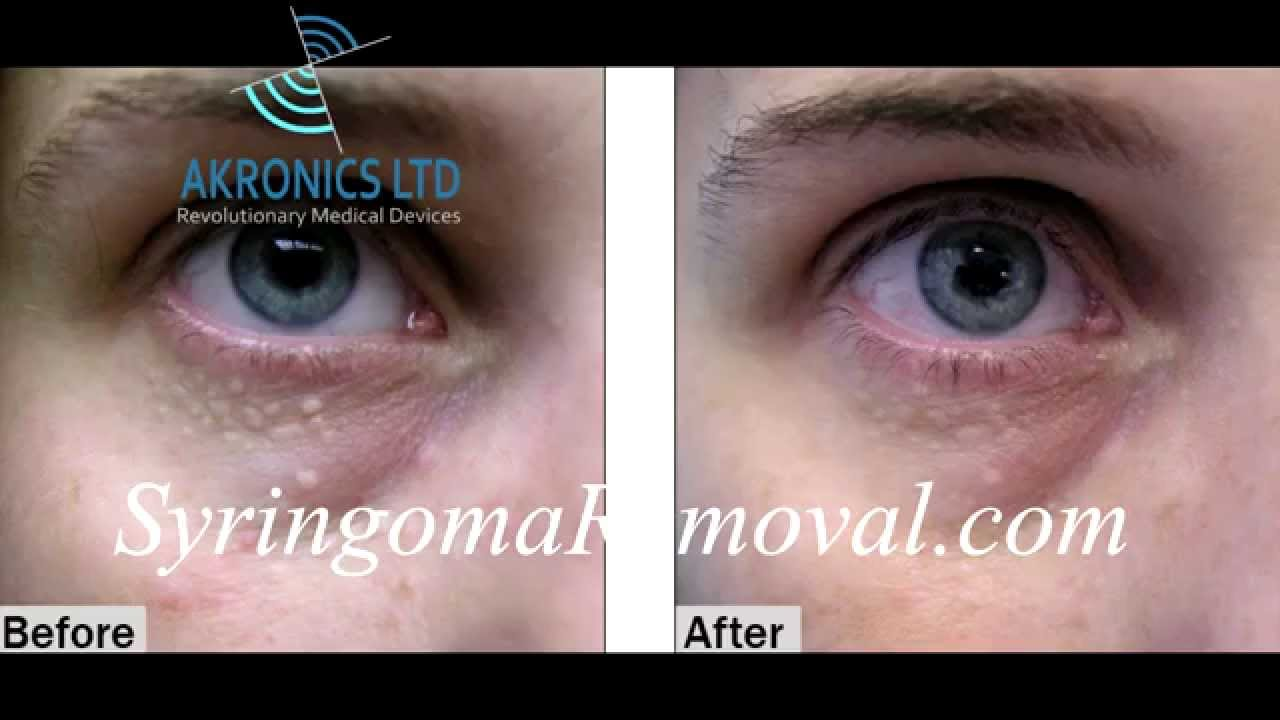 Syringoma - Causes and Treatment | Cosmetics M.D.