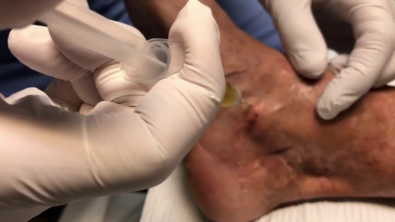 PRP Injection for Plantar Fasciitis and