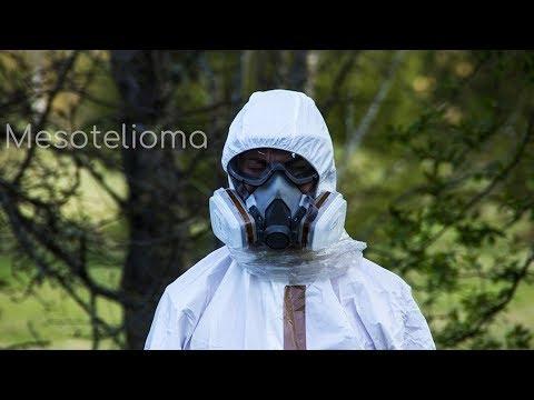 que-es-mesotelioma-⚕️📣-causas,-síntomas-y-razones-del-cáncer-por-asbesto