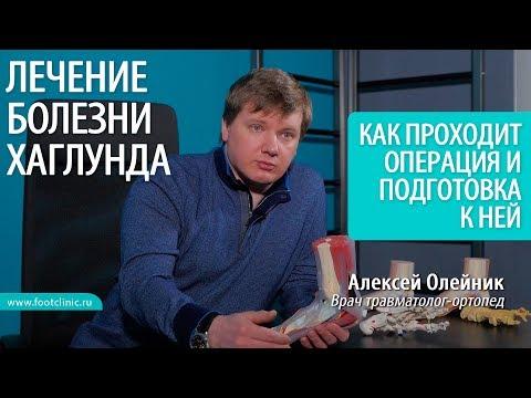 Как проходит операция при деформации Хаглунда? БОЛЕЗНЬ ХАГЛУНДА ЛЕЧЕНИЕ Алексей Олейник #footclinic