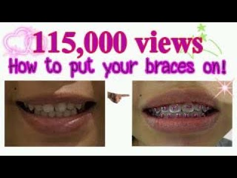 How to put your braces on!