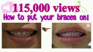 How to put your braces on! screenshot 3