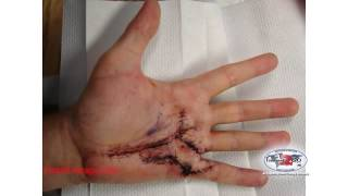 dupuytren s disease conservative and surgical techniques