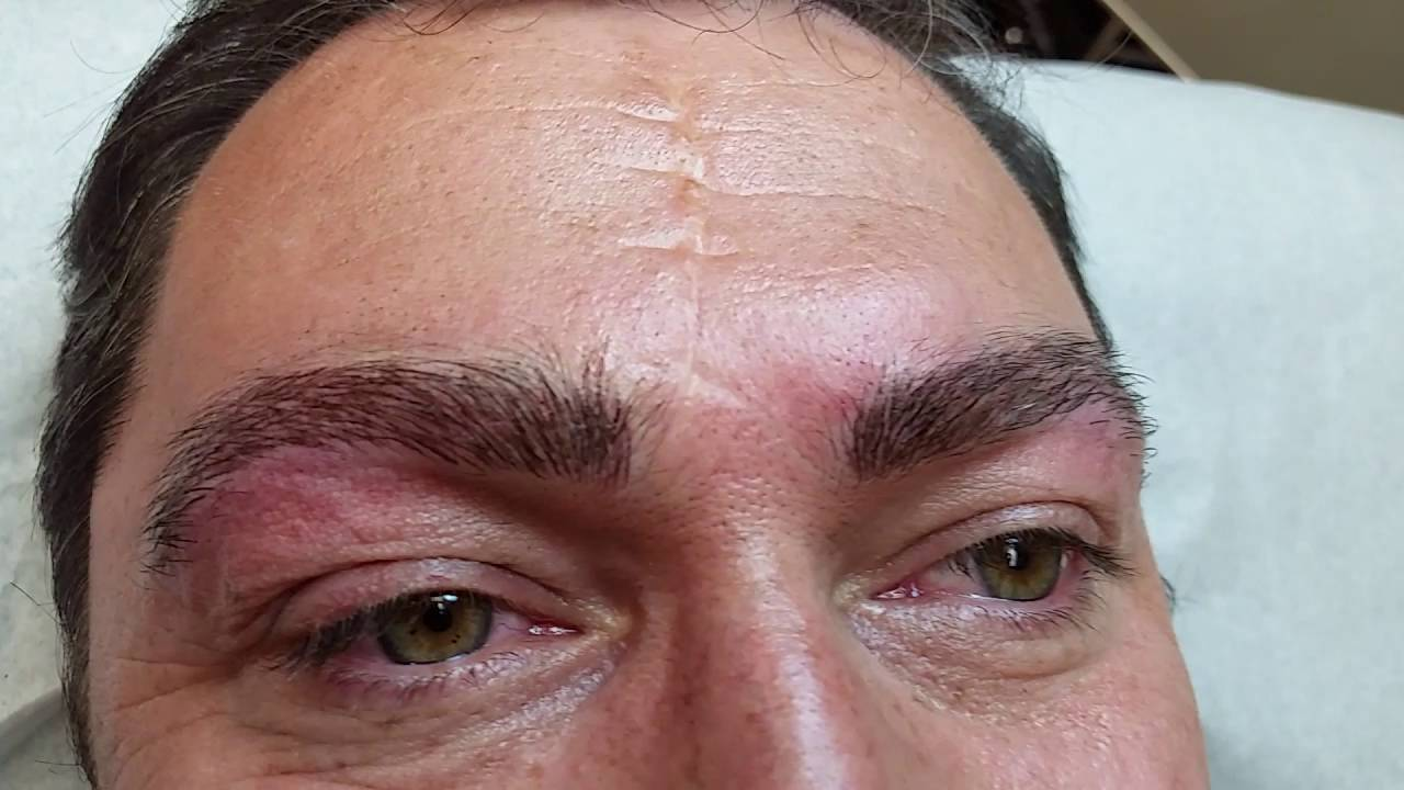 Microblading Eyebrows For Alopecia Men Om Spachicago Youtube