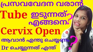 How To Induce Labour Pain Via Tube / How To Open Cervix Malayalam