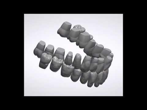 dentalwingsが提供する上下顎歯の解剖学的形態のSTLデータ(バイト情報無し)