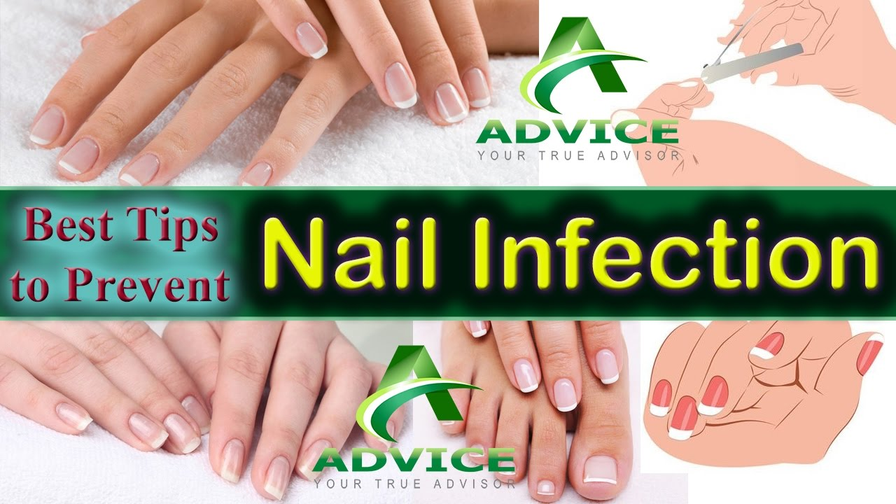 Best Tips to prevent Nail infection | Nail Care routine for ...