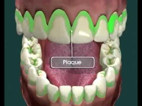 Nguyên nhân gây sâu răng và cách phòng tránh